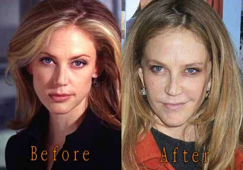 Ally Walker Nose Job