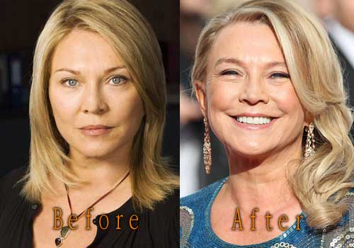 Amanda Redman Plastic Surgery Top Celebrity Surgery