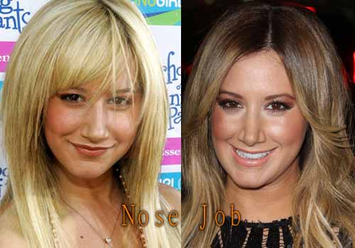 Ashley Tisdale Nose Job