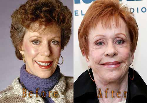 Carol Burnett Facelift