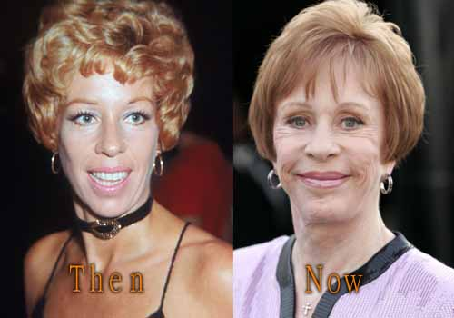Carol Burnett Plastic Surgery