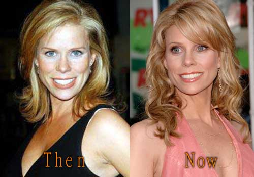 Cheryl Hines Plastic Surgery Before And After Top