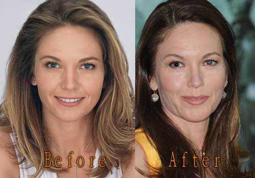 Diane Lane Plastic Surgery