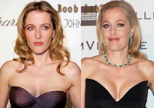 Gillian Anderson Breast Implants