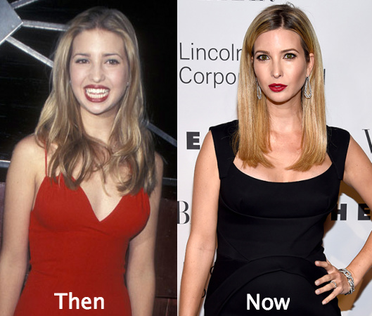 Ivanka Trump Plastic Surgery Boob Job Nose Job
