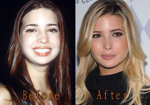 Ivanka Trump Plastic Surgery Before After Ivanka Trump Plastic Surgery ...