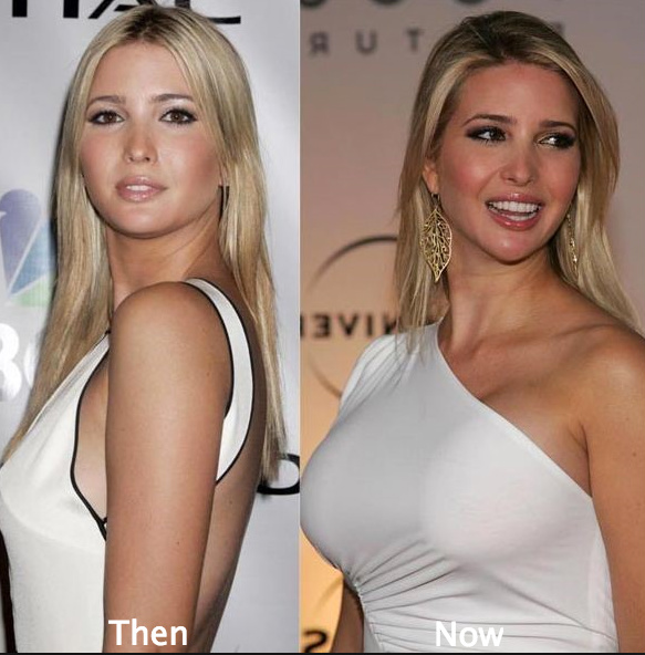 ivanka-trump-breast-implants-before-and-after