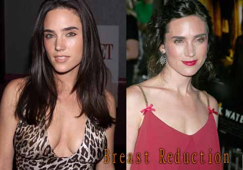 Jennifer Connelly Plastic Surgery Boob Job