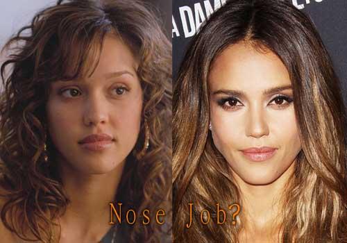 Jessica Alba Nose Job
