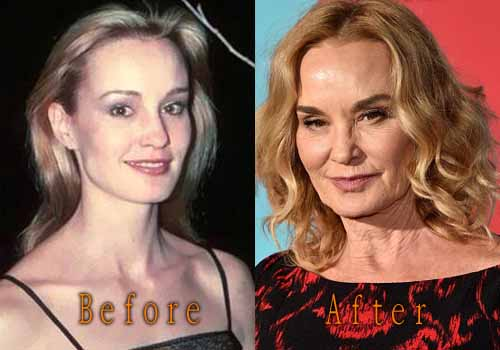 Jessica Lange Plastic Surgery Facelift