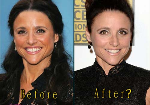 Julia-Louis-Dreyfus nose job
