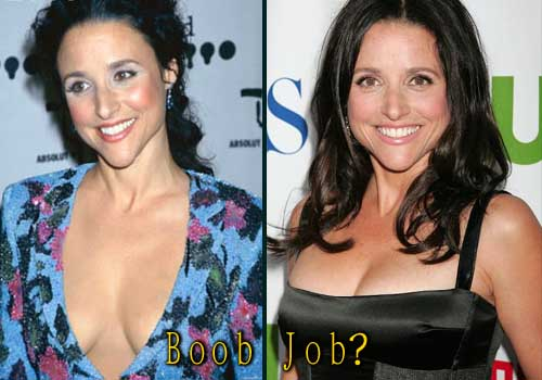 Julia-Louis-Dreyfus plastic surgery