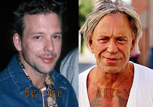 Mickey Rourke Bad Plastic Surgery