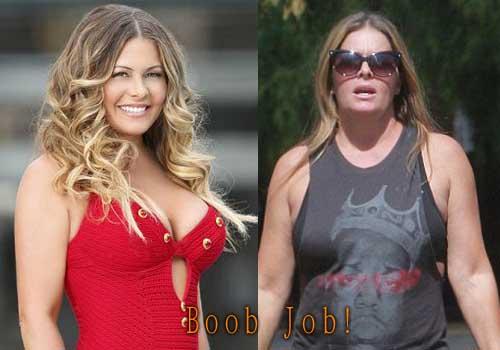 Nicole Eggert Boob Job