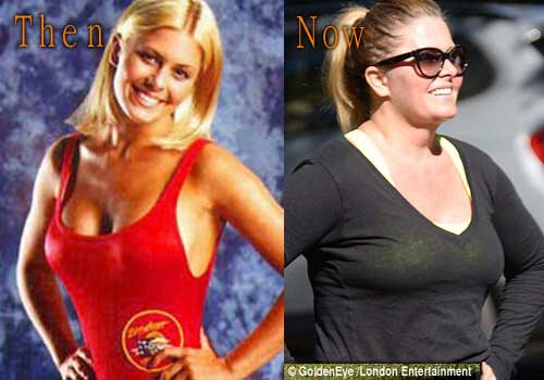 Nicole Eggert Plastic Surgery