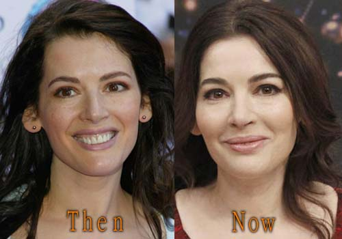 Nigella Lawson Facelift, Botox
