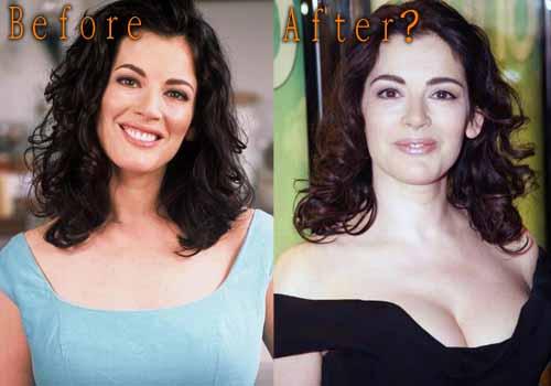 Nigella Lawson Plastic Surgery
