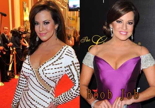 Robin Meade Breast Implants