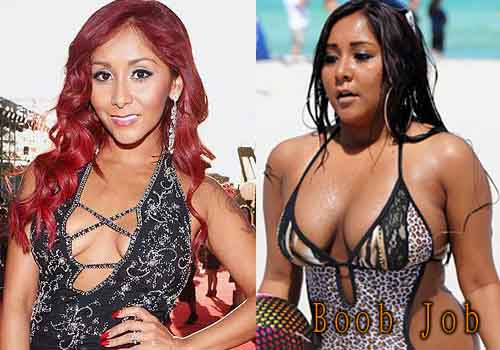 Snooki Plastic Surgery Boob Job