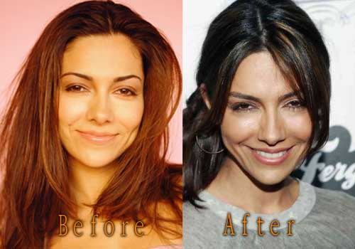 Vanessa Marcil Plastic Surgery Before And After Picture