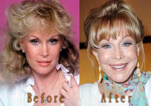 Barbara Eden Facelift, Botox