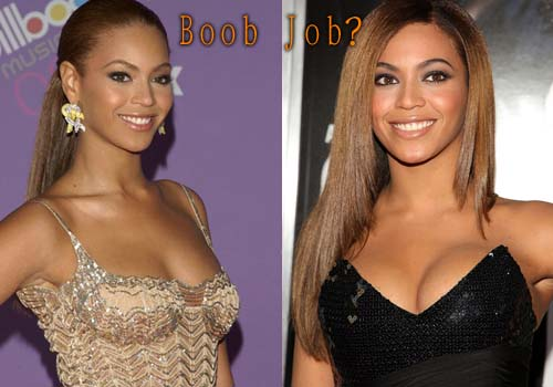 Beyonce Breast Implants