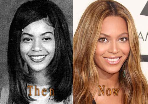 Beyonce Plastic Surgery Before After Nose Job Boob Job