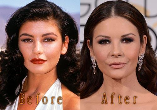Catherine Zeta-Jones Plastic Surgery Before