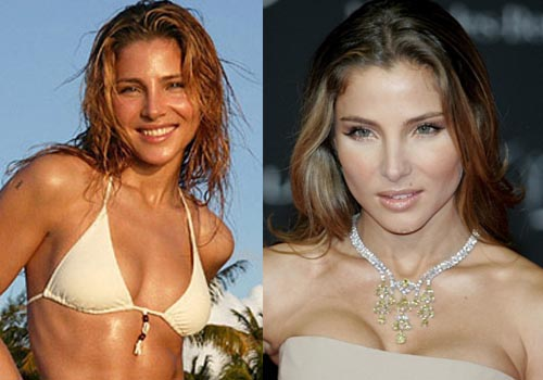 Elsa Pataky Breast Implants