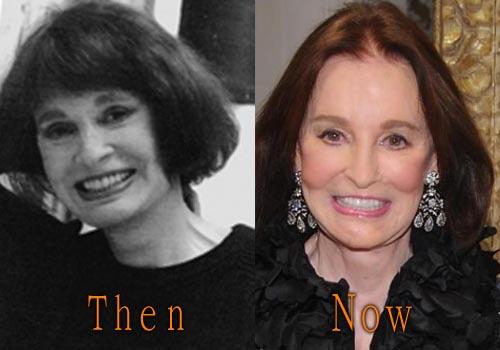 Gloria Vanderbilt Facelift, Botox