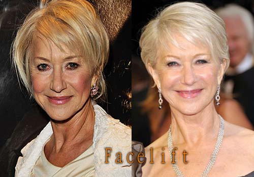 Helen Mirren Facelift, Botox