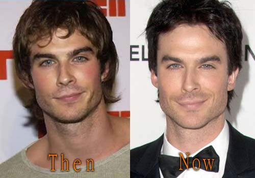 Ian Somerhalder Facelift