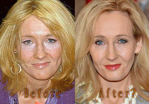 JK Rowling Facelift Plastic Surgery Before and After | Celebie