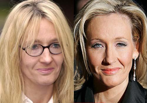 JK Rowling Plastic Surgery | Plastic surgery, Botox