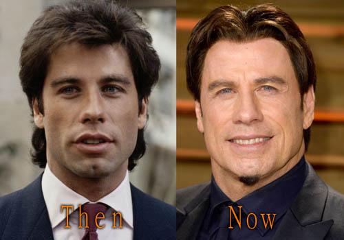 John Travolta Facelift, Botox