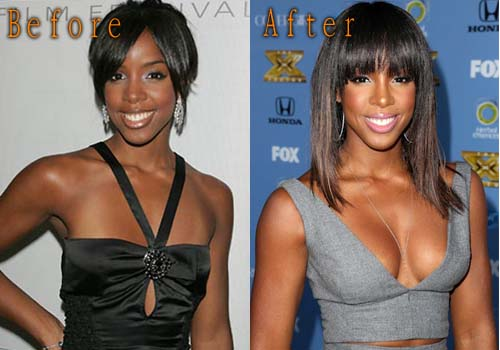 Kelly Rowland Plastic Surgery Boob Job