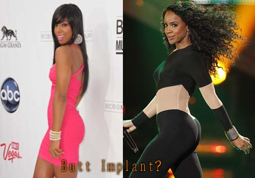 Kelly Rowland Plastic Surgery Butt Implant