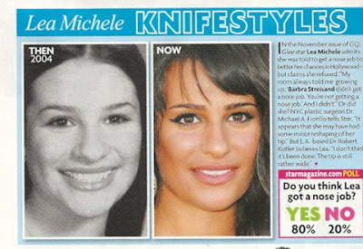 lea-michele-nose-job-before-and-after