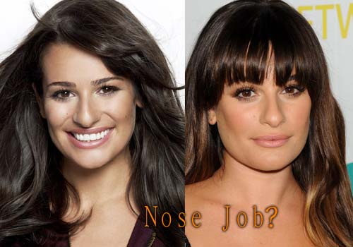 Lea Michele Plastic Surgery