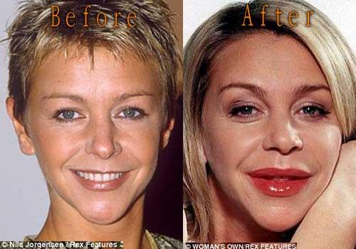 Leslie Ash Lips Injection