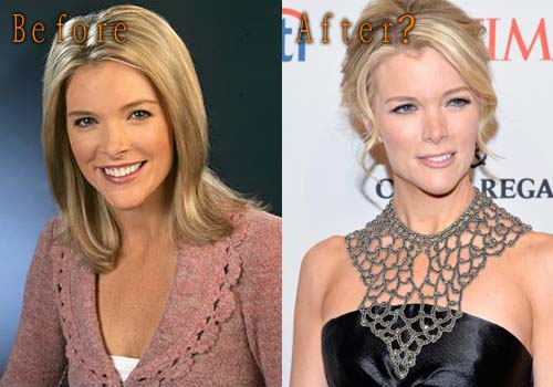 Megyn Marie Kelly Plastic Surgery