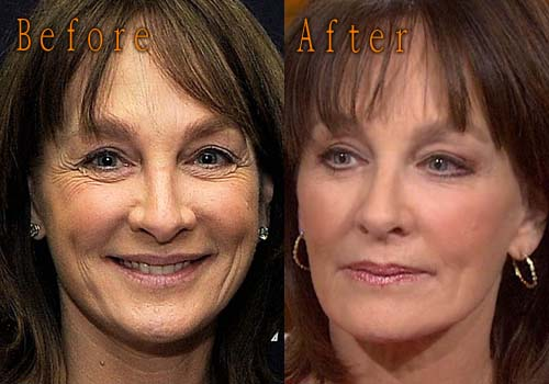Nancy Snyderman Plastic Surgery