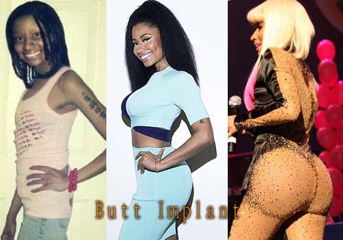 Nicki Minaj Butt Implants