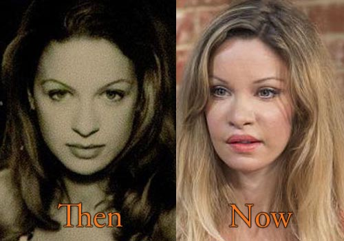 Alicia Douvall Plastic Surgery