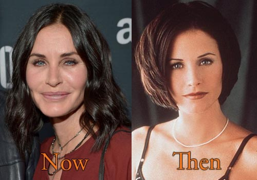 Courteney Cox Plastic Surgery Picture