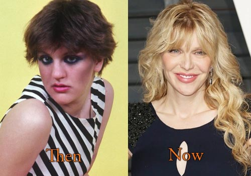 Courtney Love Plastic Surgery Nose Job, Facelift