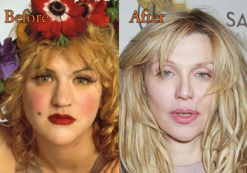 Courtney Love Plastic Surgery Before And After Facelift