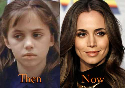 Eliza Dushku Nose Job