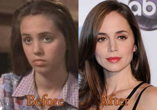 Eliza Dushku Plastic Surgery