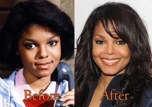 Janet Jackson Plastic Surgery Picture